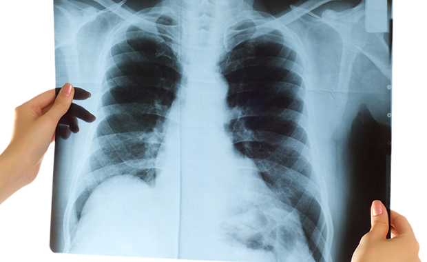 肺炎 レントゲン 医者から「肺に白い影が見える」と言われてCT検査を受けた結果