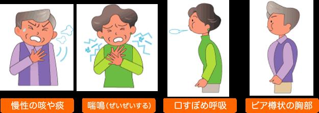 41.肺気腫(COPD)について_07